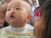 为唇腭裂患者提供免费治疗  给他们带来微笑