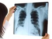 越南结核病初次患者完全治愈率达92%