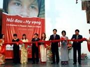 越南首次举行有关艾滋病的展会