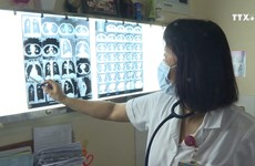 新冠肺炎疫情给越南彻底消除结核病提供机会