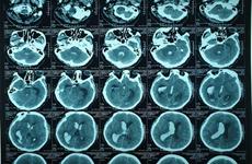 九龙江平原首次通过脑室外引流新技术成功治愈一例脑出血患者