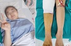 越南成功对年龄最小的患者进行股骨头的置换手术