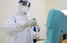 10日晚越南新增59例本地新冠肺炎确诊病例