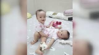 胡志明市儿童医院成功实施连体婴儿分离术