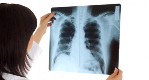 越南结核病初次患者完全治愈率达92% hinh anh 1