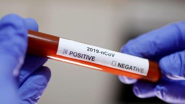 新冠肺炎疫情:越南发现第49例新冠肺炎确诊病例 hinh anh 1