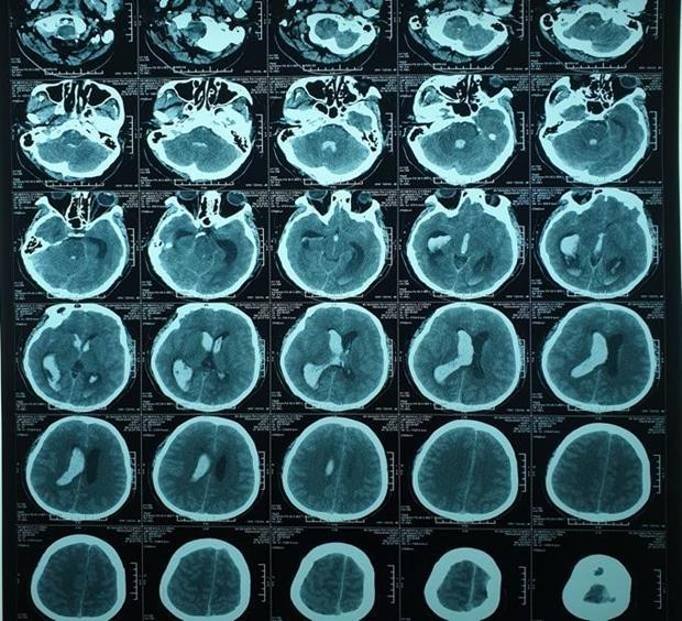 九龙江平原首次通过脑室外引流新技术成功治愈一例脑出血患者 hinh anh 1