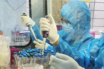 8月13日越南新增3例新冠肺炎确诊病例 hinh anh 1