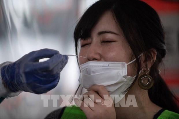 日本富士拟在越南生产新冠肺炎病毒检测试剂盒 hinh anh 1