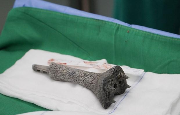 胡志明市大水镬医院成功为骨癌患者实施3D打印钛合金骨骼置换术 hinh anh 2